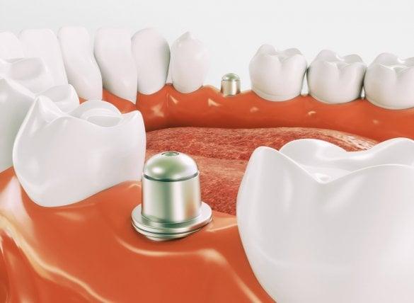 Dental Implants In Turkey Leading Global Implant Brands At Low Costs Dental Centre Turkey Dental Holiday Turkey Dentist In Turkey Dental Treatment Turkey
